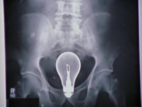 Либо у этого парня в заднице лампочка застряла, либо в его толстой кишке созрела гениальная мысль!